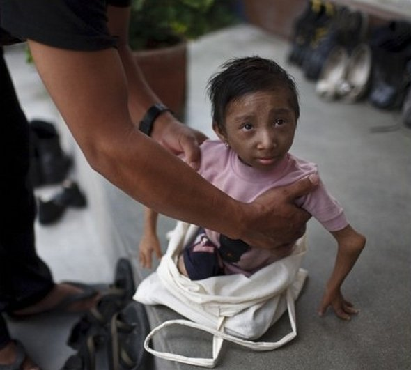 Smallest Man In The World From Nepal